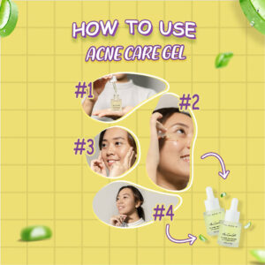 You Need Me Acne Care Gel